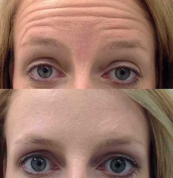 Si può spesso abbinare il boto alla fronte con il botox agli occhi, il costo sarà leggermente maggiore di 1000€ in quanto si parla di due trattamenti.