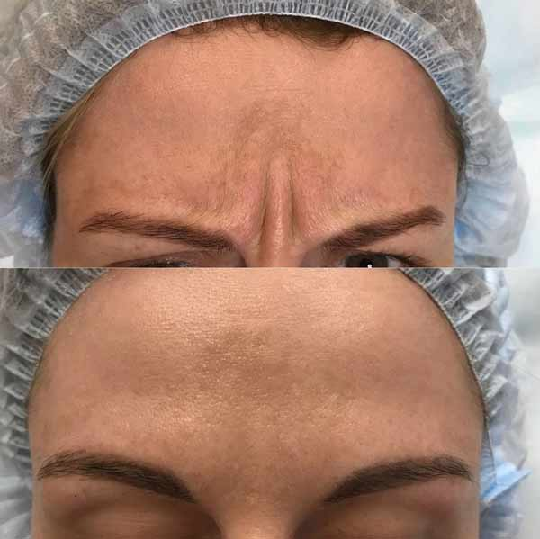Un'esempio e foto prima e dopo botox alla fronte.