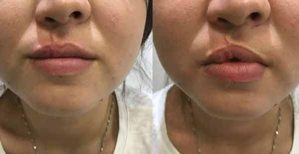 Intervento di filler labbra