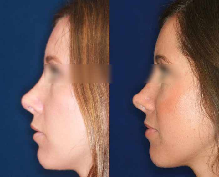 intervento al naso