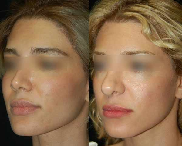 intervento di chirurgia del naso