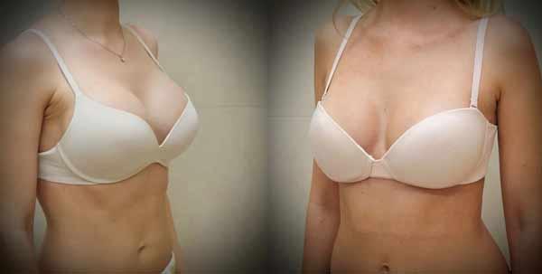 Esempio e foto prima e dopo intervento di mastoplastica riduttiva