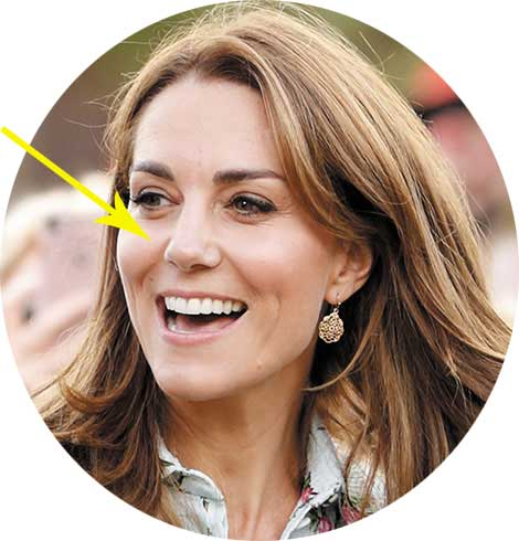 Kate Middleton e il suo naso alla francese