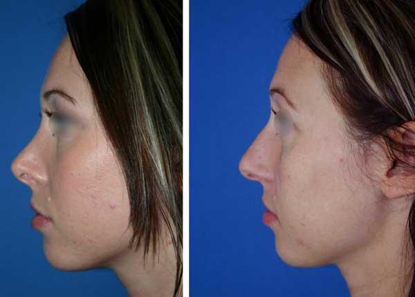 Rifare il naso senza chirurgia è possibile grazie al rinofiller