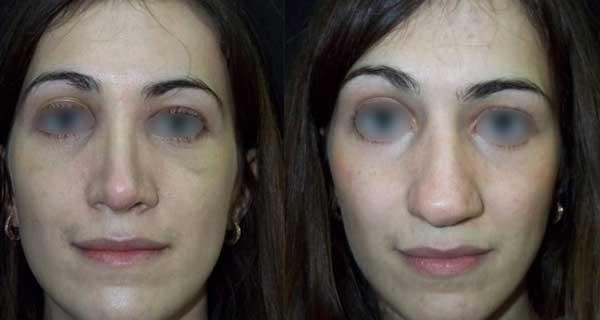 Il rinofiller per un naso lungo può essere un valido trattamento
