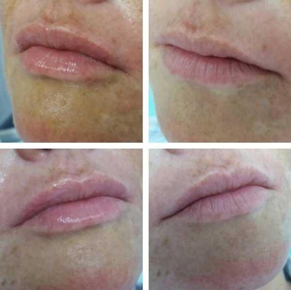 Il filler di acido ialuronico alle labbra uno dei trattamenti più frequenti