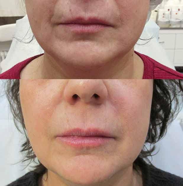 Il botulino alle labbra è un trattamento chirurgico efficace per dare volume alle labbra