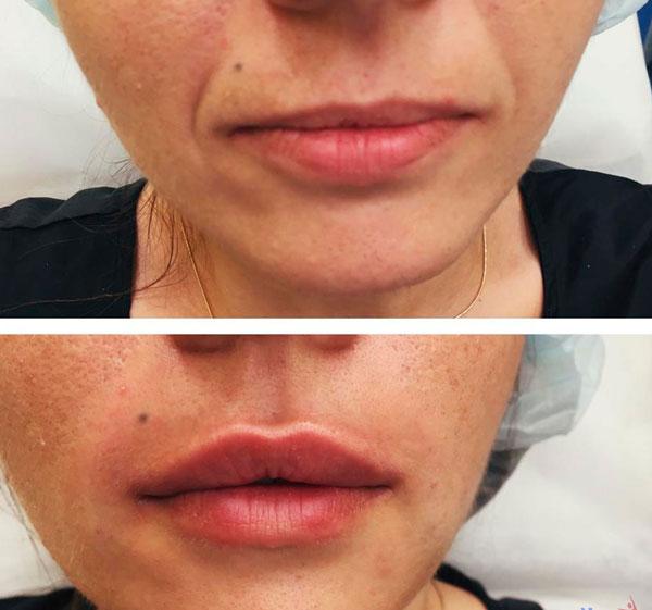 Il prezzo del botulino sulle labbra in modo temporaneo è di circa 500€