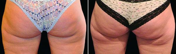 Un classico trattamento ai glutei di criolipolisi prima e dopo