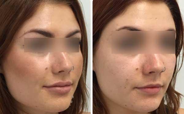 Uno dei trattamenti frequenti del filler al viso è l'acido ialuronico