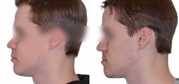 Filler contorno mandibolare