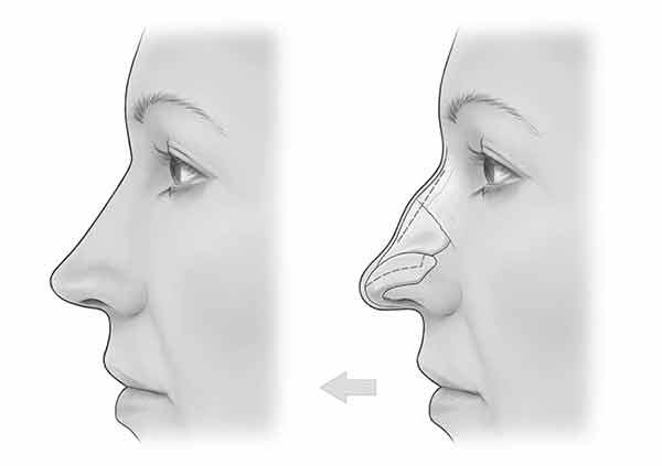 Filler naso