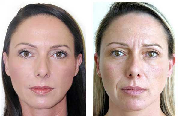 Prima e dopo esempio 3