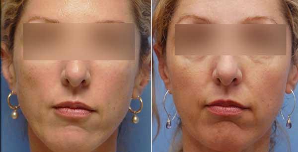 Esempio di filler viso prima e dopo trattamento