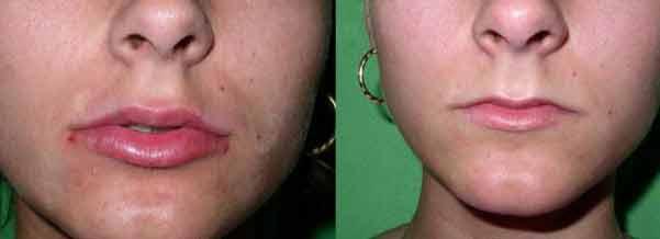 Esempio di intervento alle labbra con iniezioni di botulino
