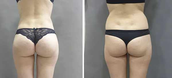 Esempio di un lifting ai glutei prima e dopo intervento