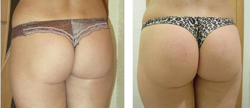 Il lifting ai glutei si può fare tramite intervento chirurgico, questo un esempio di prima e dopo del lato b