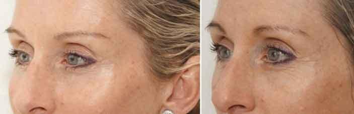 Esempi di un lipofilling alle occhiaie