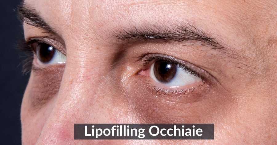 Lipofilling Occhiaie: Costo e Post Operatorio