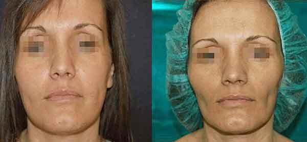 Lipofilling viso prima e dopo