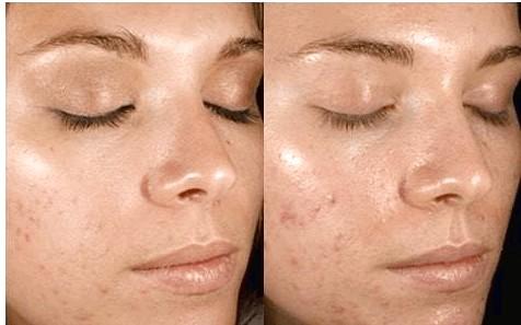 Peeling chimico esempio di prima e dopo