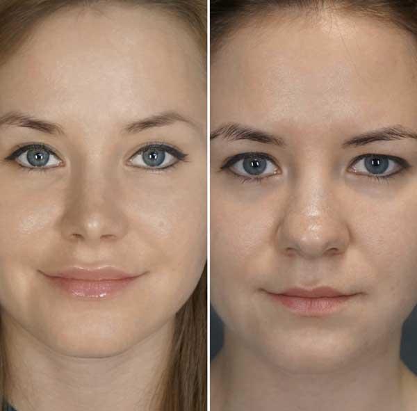Settoplastica prima e dopo