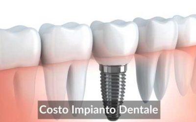 Costo Impianto Dentale: 4 Idee Di Prezzi