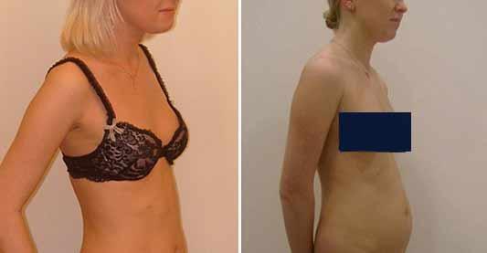 acido ialuronico al seno costo dai 300 ai 2000€