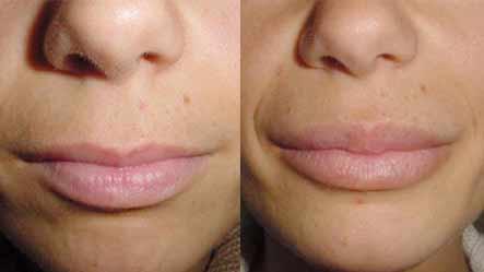 acido ialuronico labbra costo