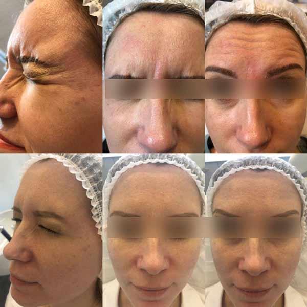 botox viso prima e dopo trattamento