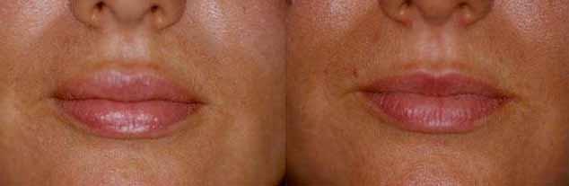 esempio di foto di labbra rifatte prima e dopo