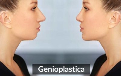 Genioplastica Di Avanzamento: Chirurgia Del Mento