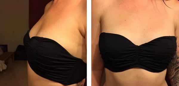 inizioni di acido ialuronico al seno