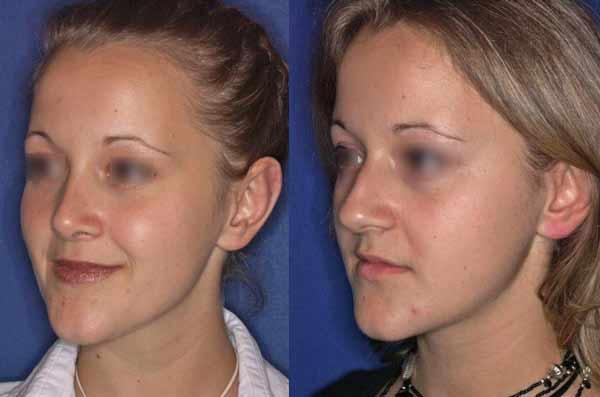 Le iniezioni di acido ialuronico possono aiutare a rimuovere le rughe del naso