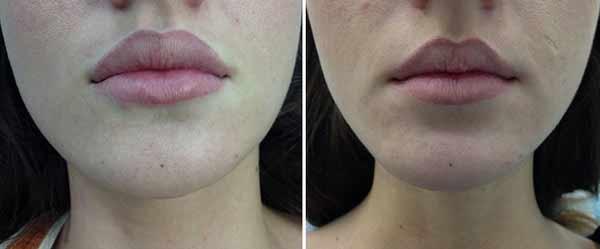 iniezioni di acido ialuronico alle labbra