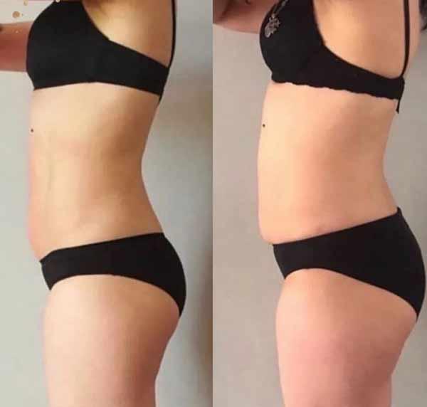 La laseripolisi ai fianchi può offrire un giusto risultato e alternativa alla liposuzione