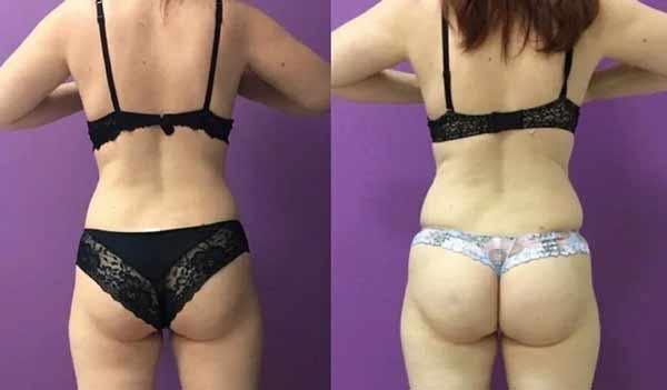 Ecco un esempio di laserlipolisi prima e dopo l'intervento