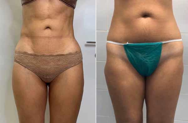 liposcultura addome e gambe