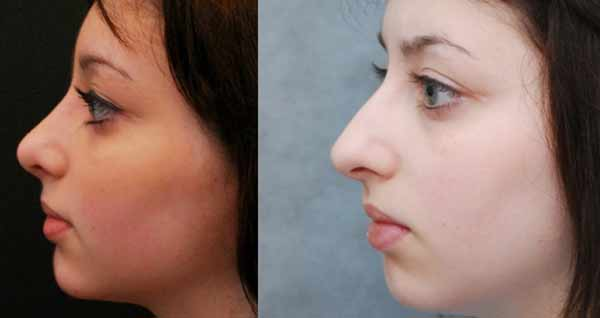 Riempimento del naso con acido ialuronico una delle tecniche piu' usare per il rinofiller