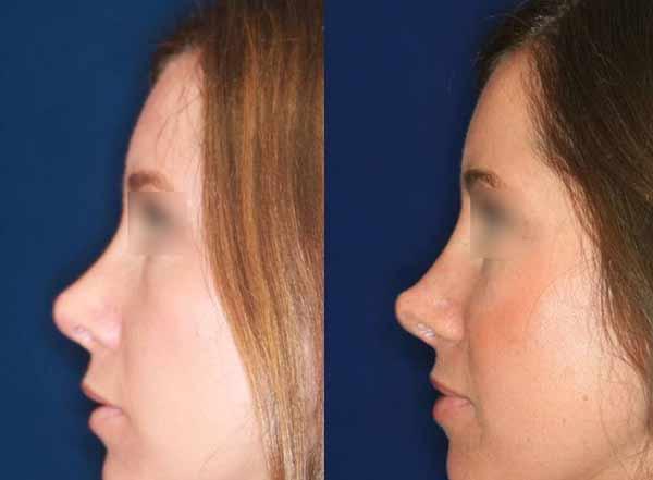 setto nasale deviato