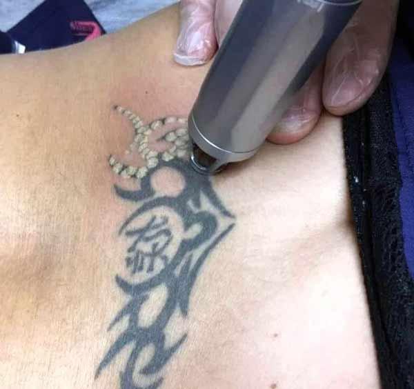 cancellare il tatuaggio