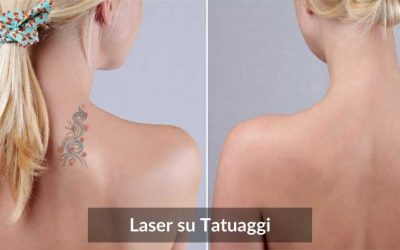 Laser Tatuaggi: Cancellare Tattoo