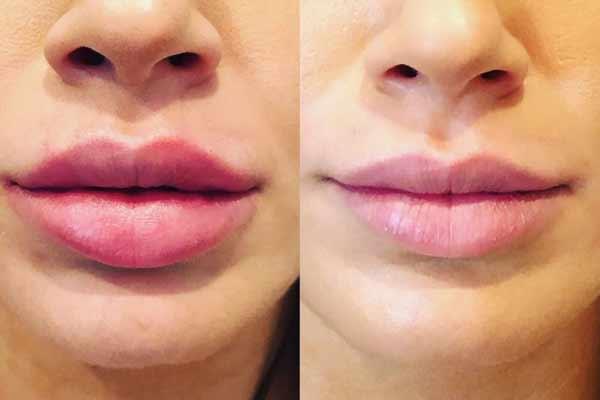 prima e dopo intervento di permalip alle labbra