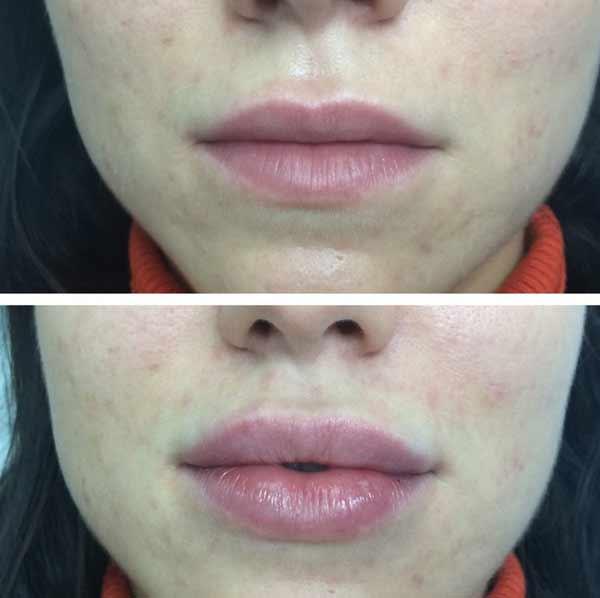 protesi alla labbra con permalip
