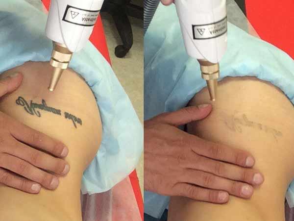 costi rimozione tatuaggio
