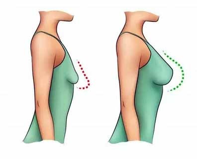 seno cadente rimedi di chirurgia estetica