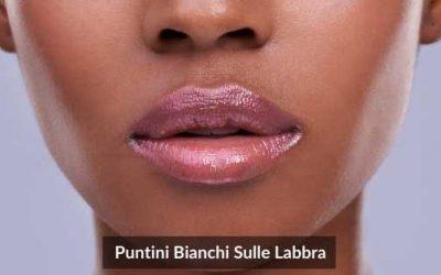 Come Eliminare I Puntini Bianchi Sulle Labbra