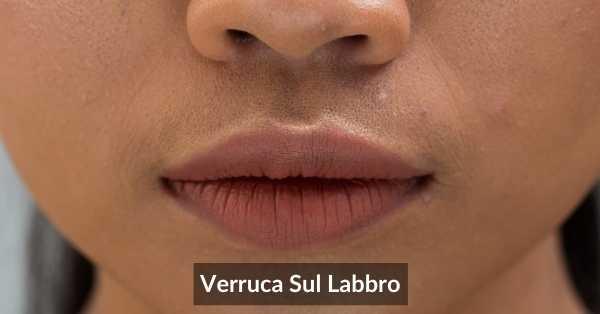 Verruca Sul Labbro