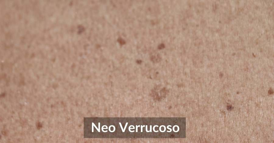 Neo Verrucoso