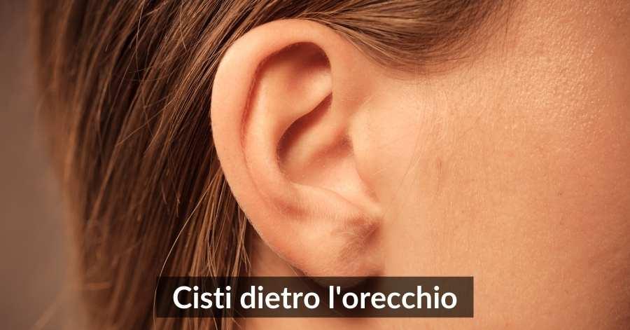 Cisti dietro l'orecchio